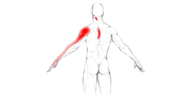 Illustration courtesy of Painotopia.com at http://www.painotopia.com/infraspinatus-muscle.html#pain-zone
